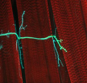 Two colored neurons stretch across red muscle fibers