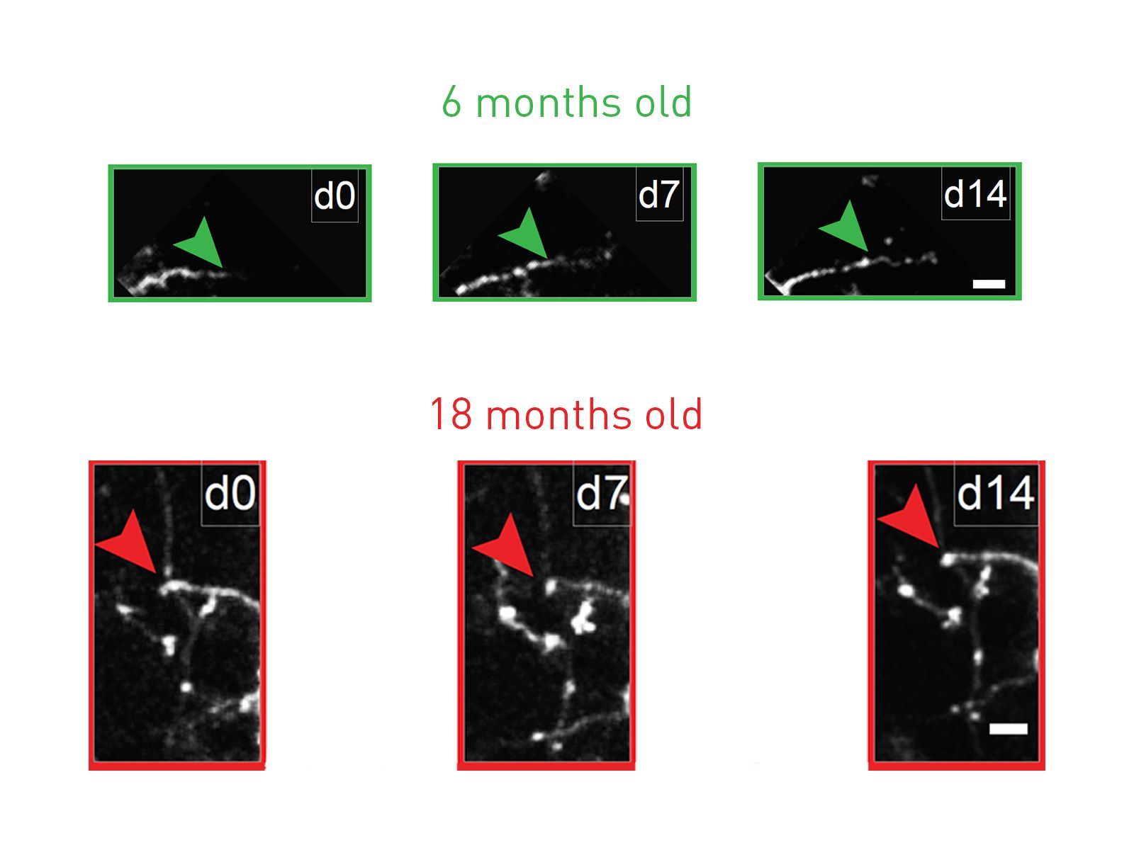 Antidepressant restores youthful flexibility to aging inhibitory neurons