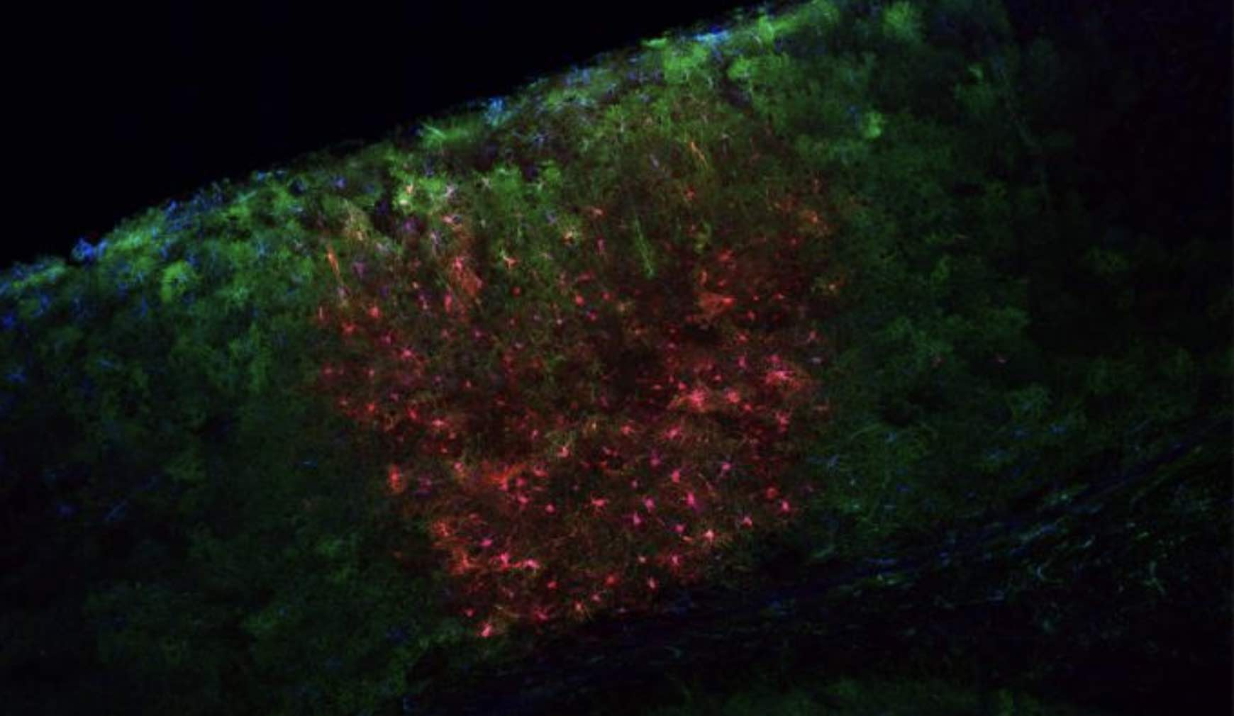 BRAIN grant will fund new tools to study astrocytes
