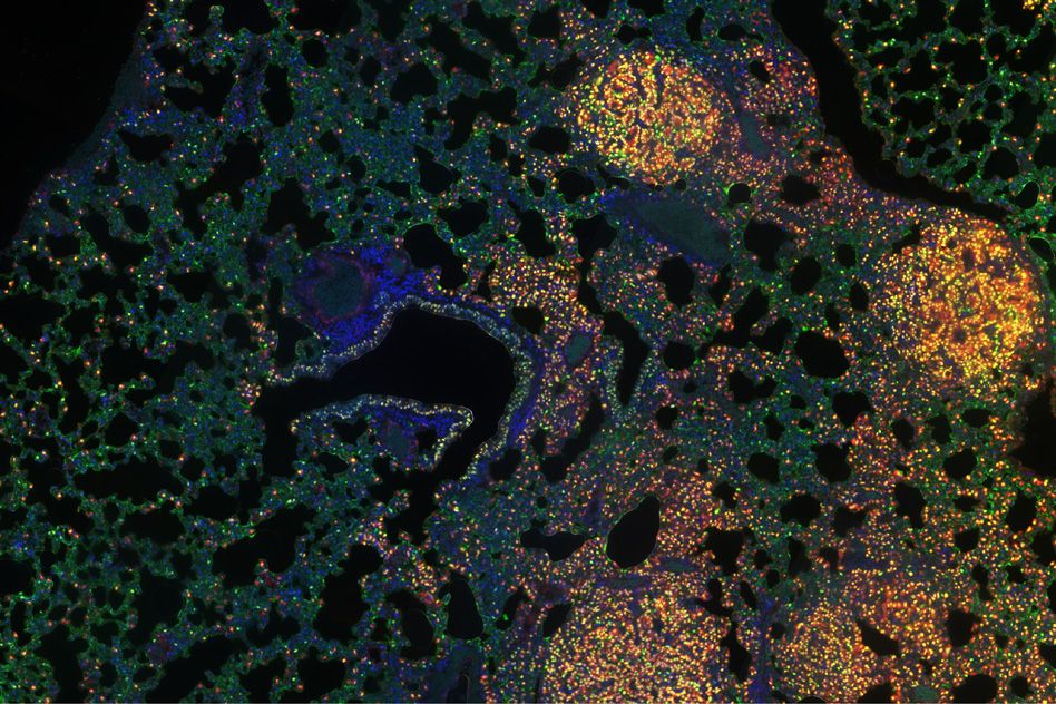 Gene-controlling mechanisms play key role in cancer progression